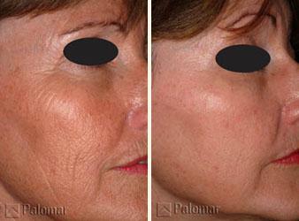 Лазерное омоложение кожи когда можно делать