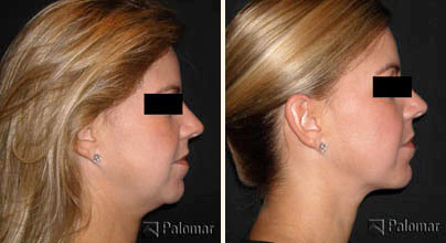 How to Tighten Loose Neck Skin: 14