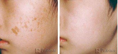 Средство для выведения пигментных пятен с лица